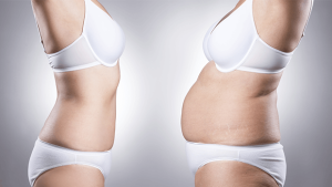 Womens Body Before and After